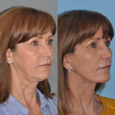 Facelift Gallery - Patient 31709472 - Image 1