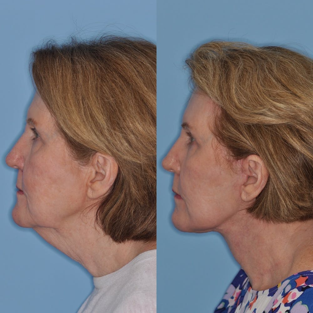 Facelift Gallery - Patient 31709470 - Image 4