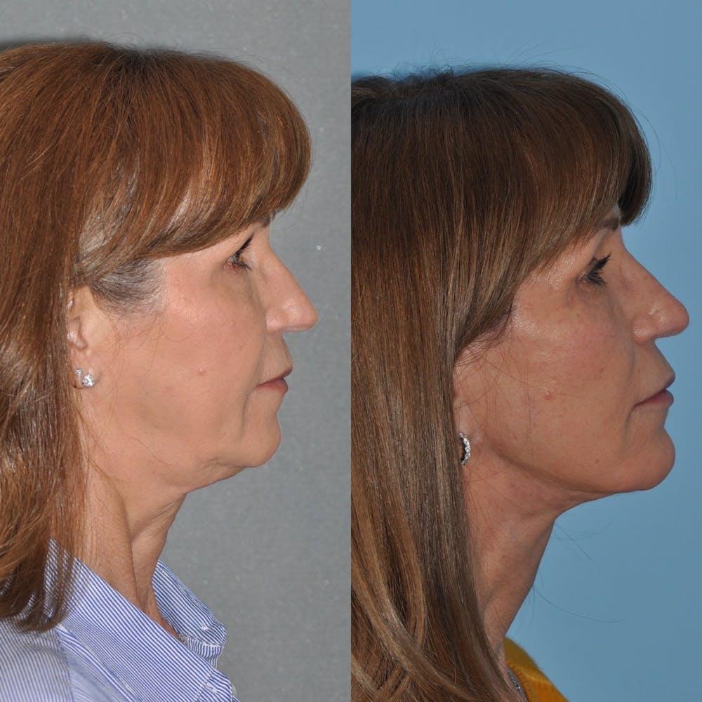 Facelift Gallery - Patient 31709472 - Image 2