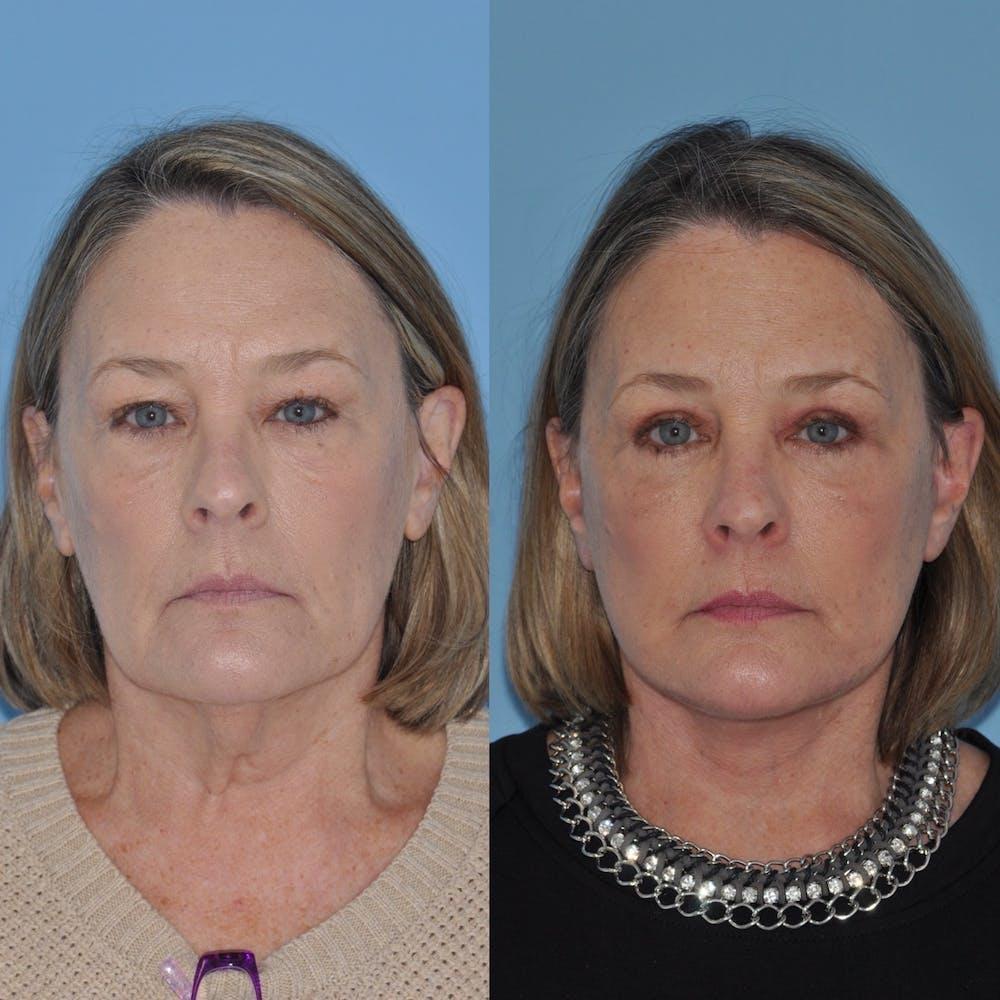 Facelift Gallery - Patient 31709471 - Image 4