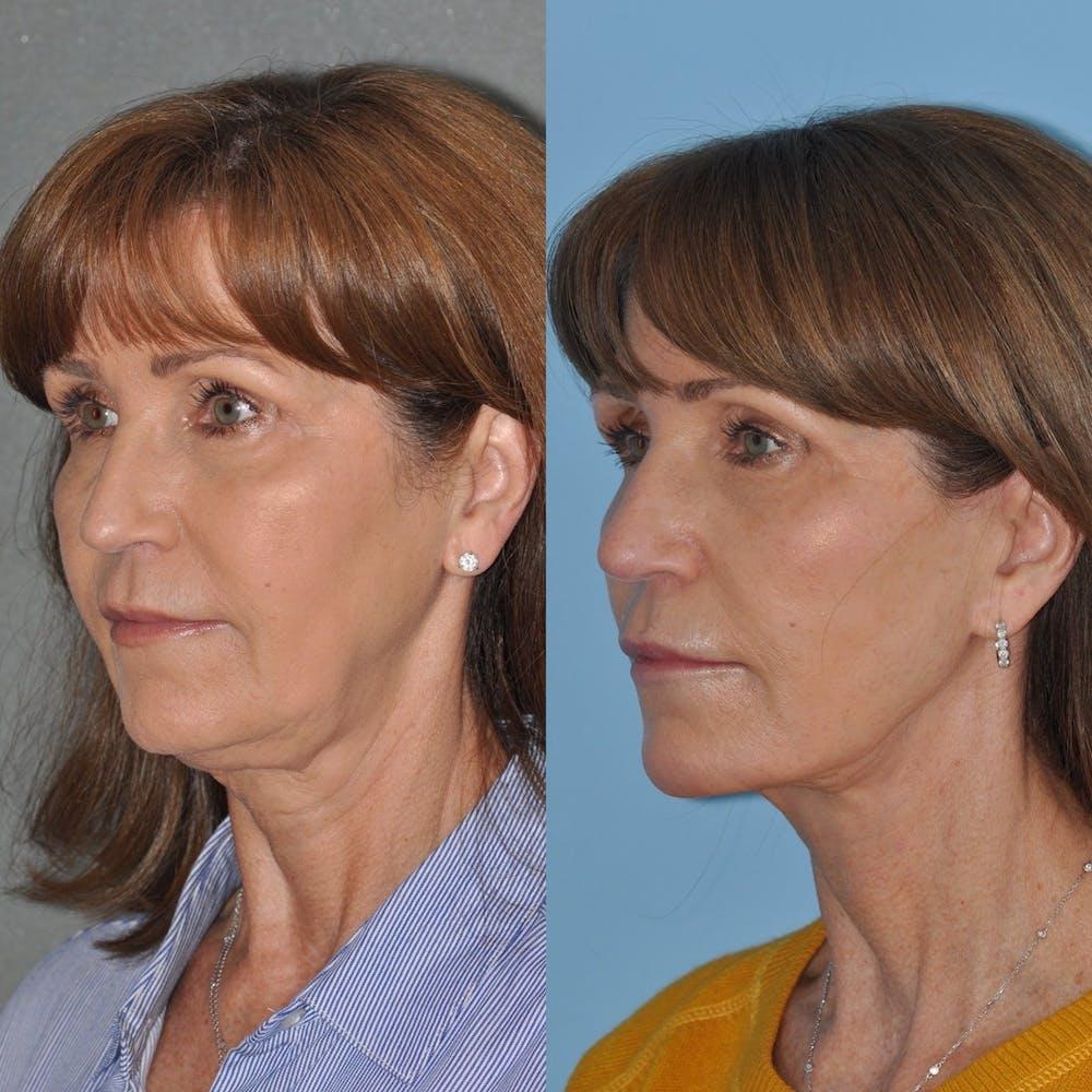 Facelift Gallery - Patient 31709472 - Image 3