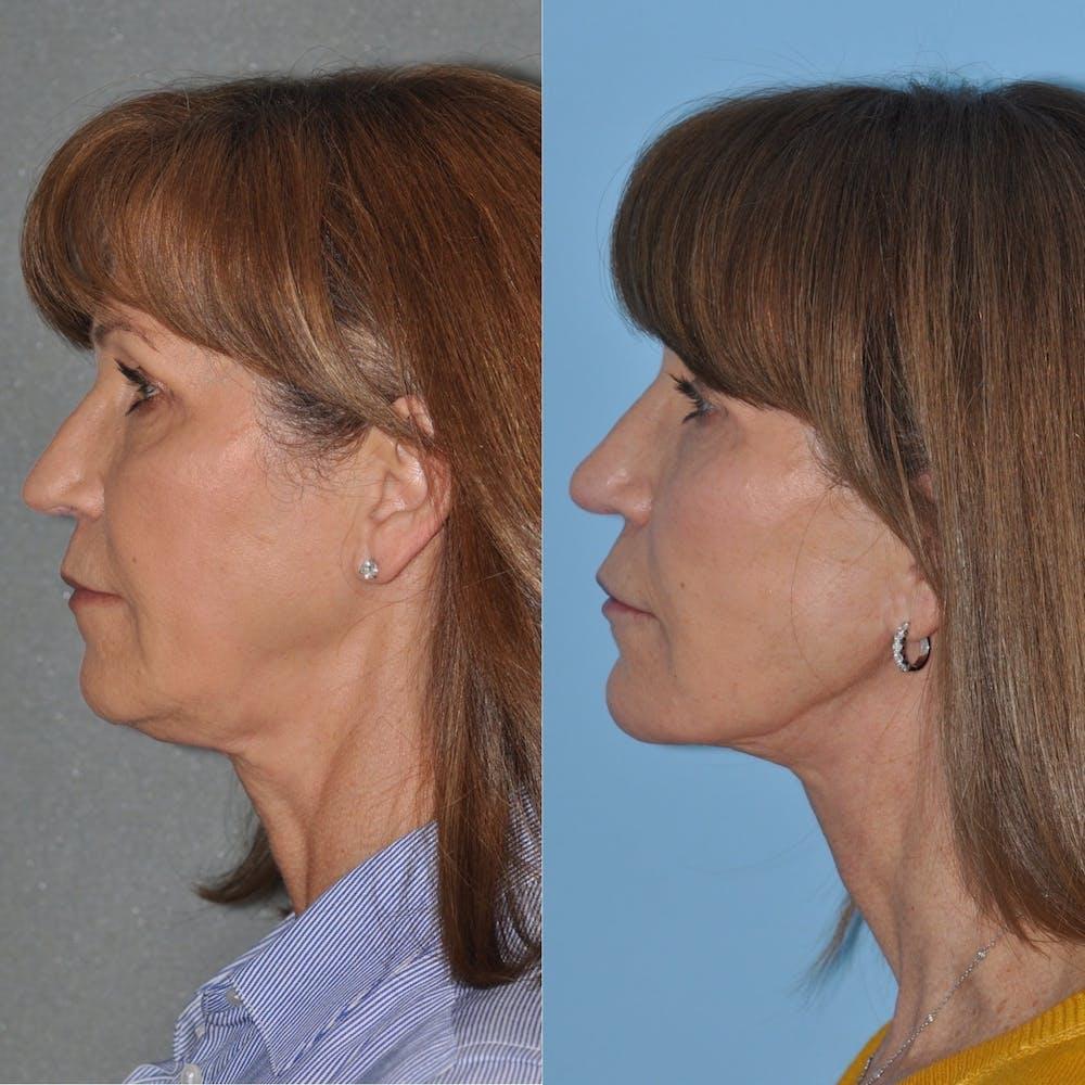Facelift Gallery - Patient 31709472 - Image 4