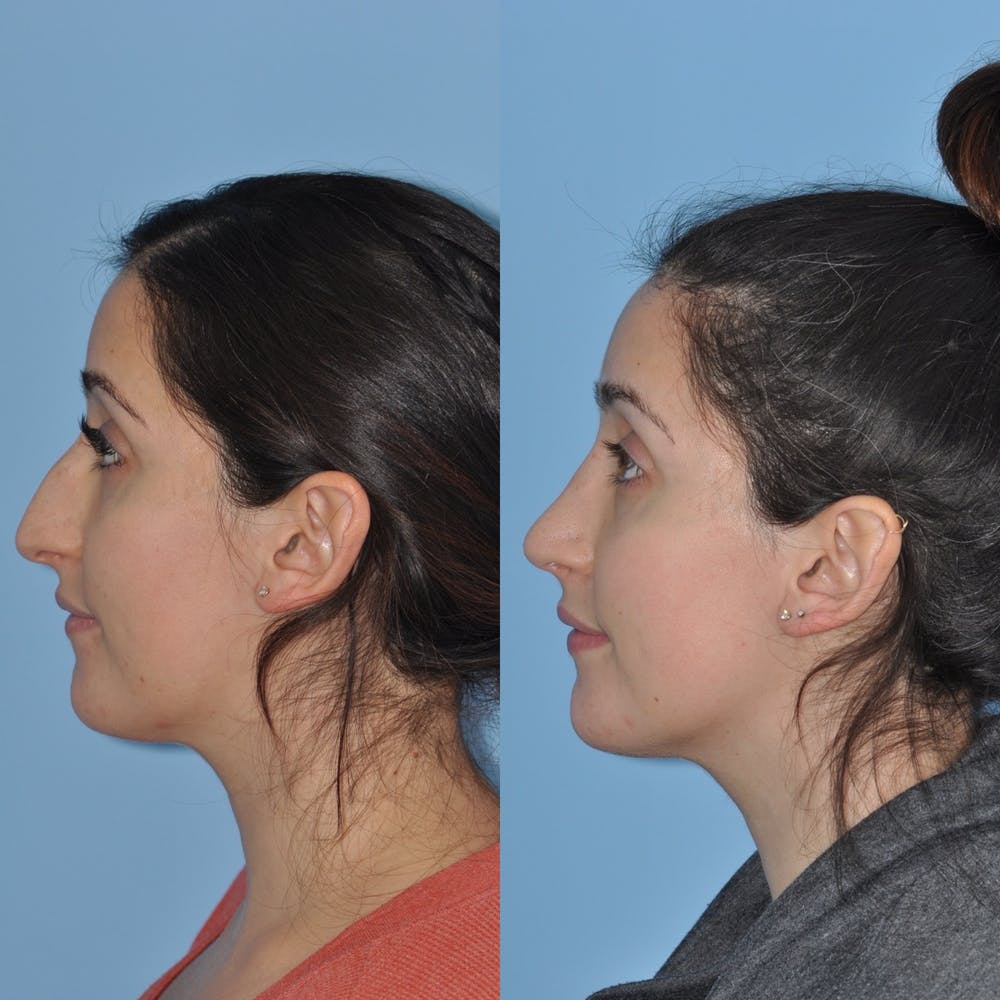 Rhinoplasty Gallery - Patient 31710039 - Image 1