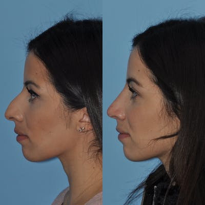Rhinoplasty Gallery - Patient 31710040 - Image 1