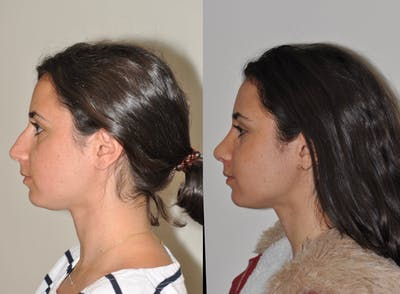 Rhinoplasty Gallery - Patient 31710041 - Image 1