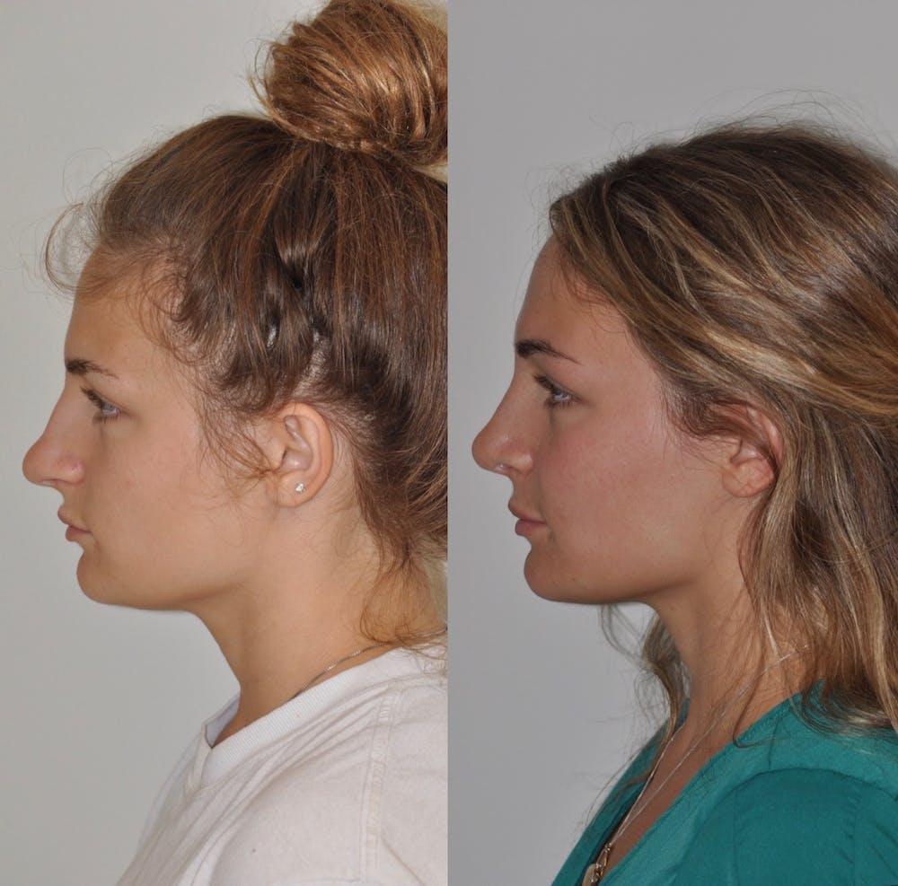 Rhinoplasty Gallery - Patient 31710042 - Image 1