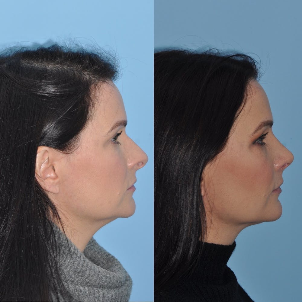 Rhinoplasty Gallery - Patient 31710038 - Image 3