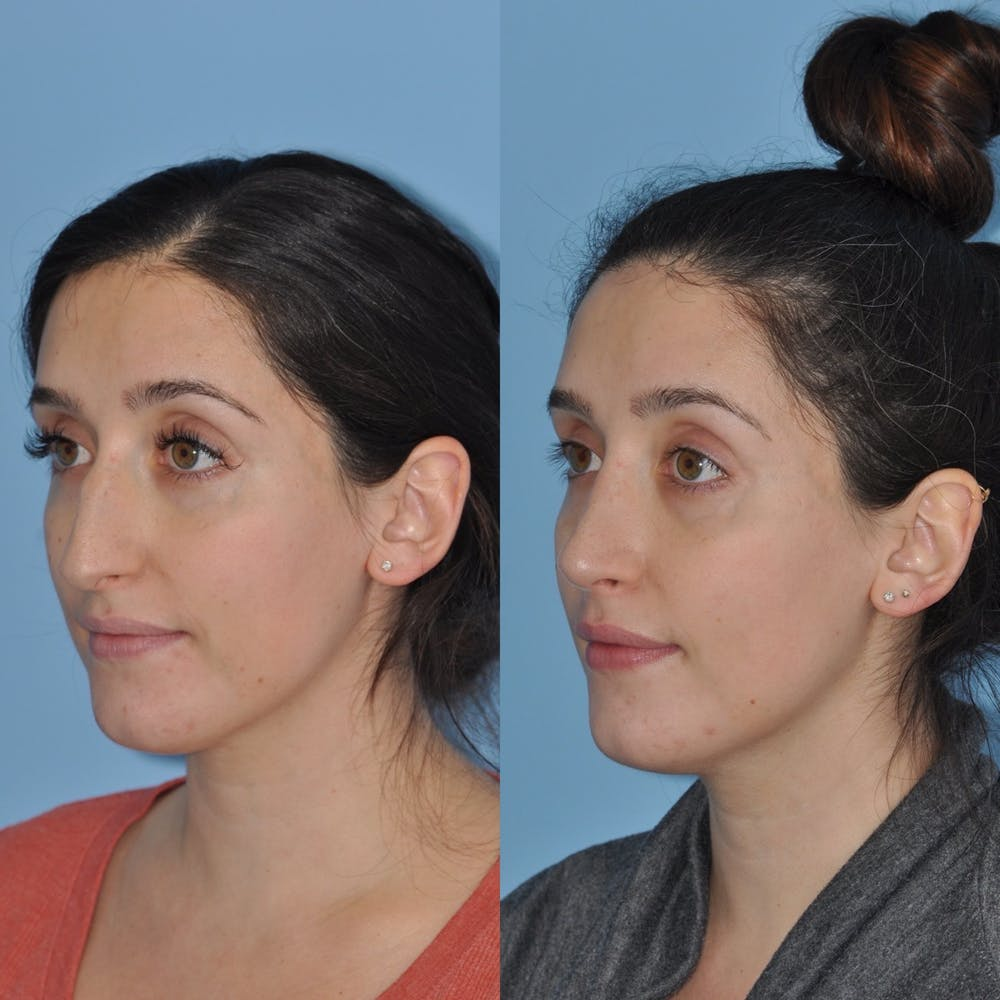 Rhinoplasty Gallery - Patient 31710039 - Image 3