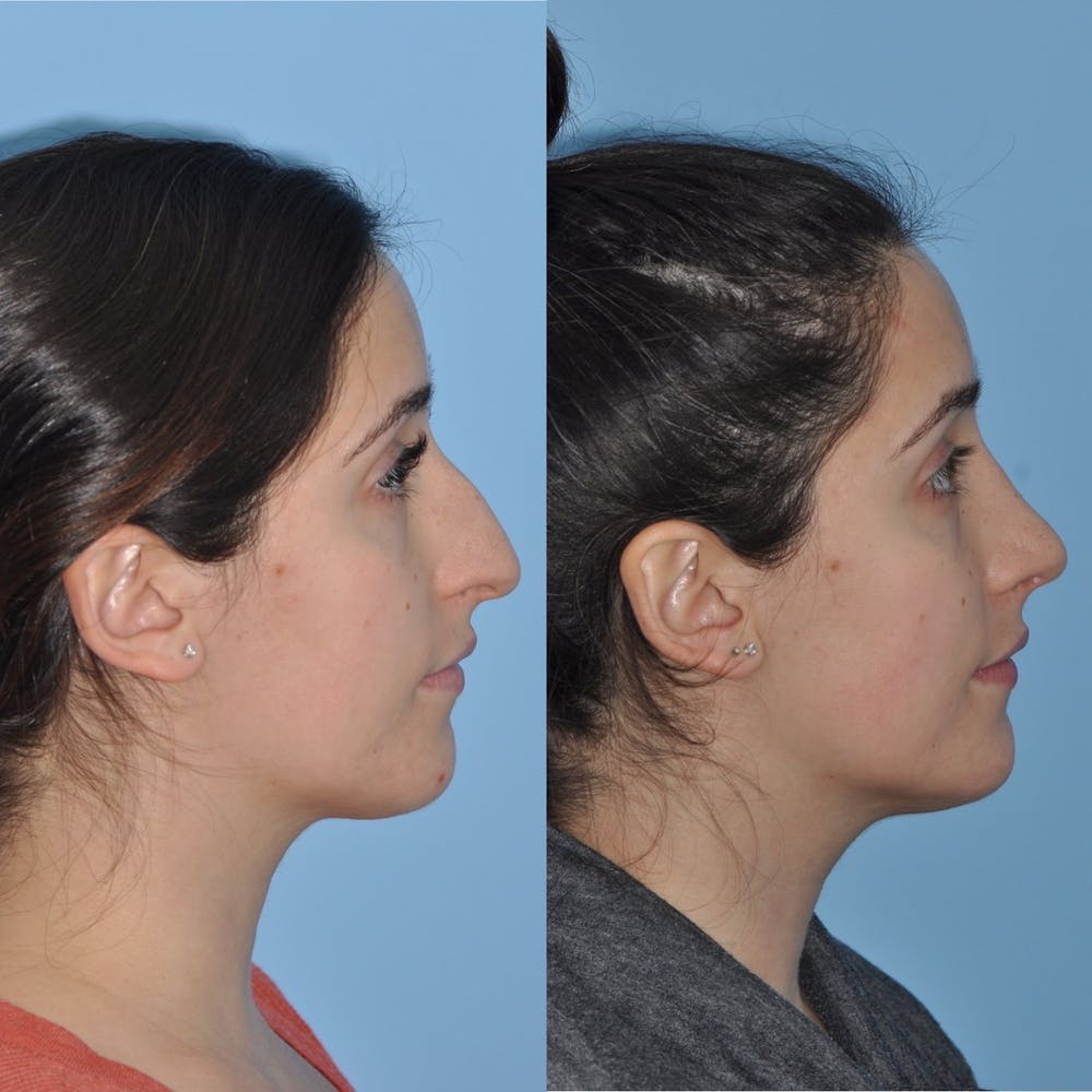 Rhinoplasty Gallery - Patient 31710039 - Image 4