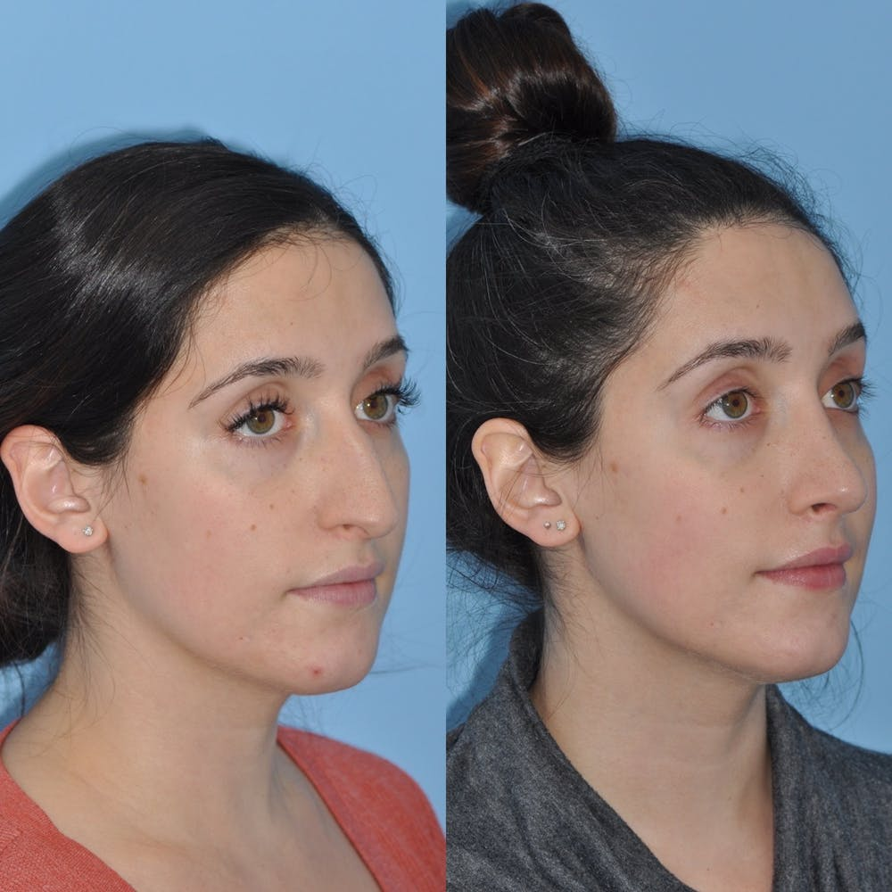 Rhinoplasty Gallery - Patient 31710039 - Image 5