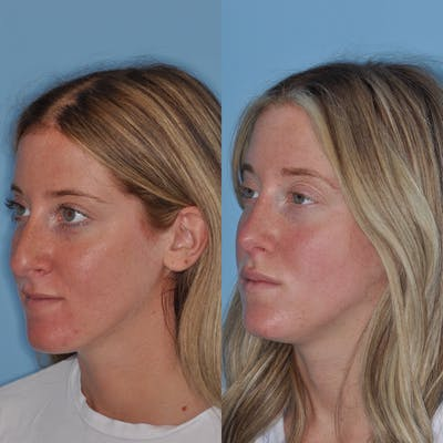 Rhinoplasty Gallery - Patient 31710045 - Image 1