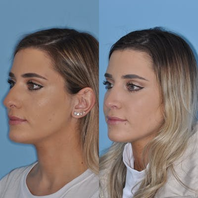 Rhinoplasty Gallery - Patient 31710046 - Image 1