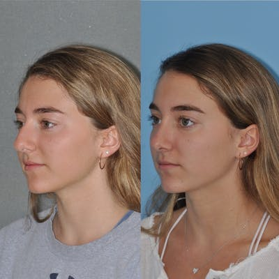 Rhinoplasty Gallery - Patient 31710044 - Image 2