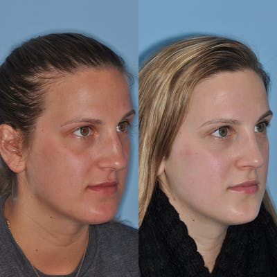 Rhinoplasty Gallery - Patient 31710047 - Image 1