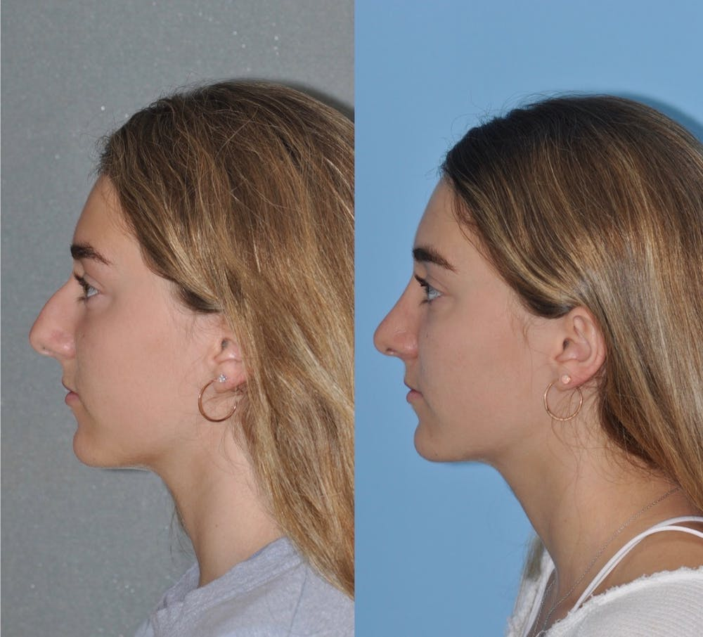 Rhinoplasty Gallery - Patient 31710044 - Image 3