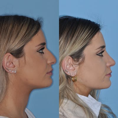 Rhinoplasty Gallery - Patient 31710046 - Image 2