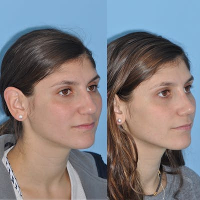 Rhinoplasty Gallery - Patient 31710048 - Image 1