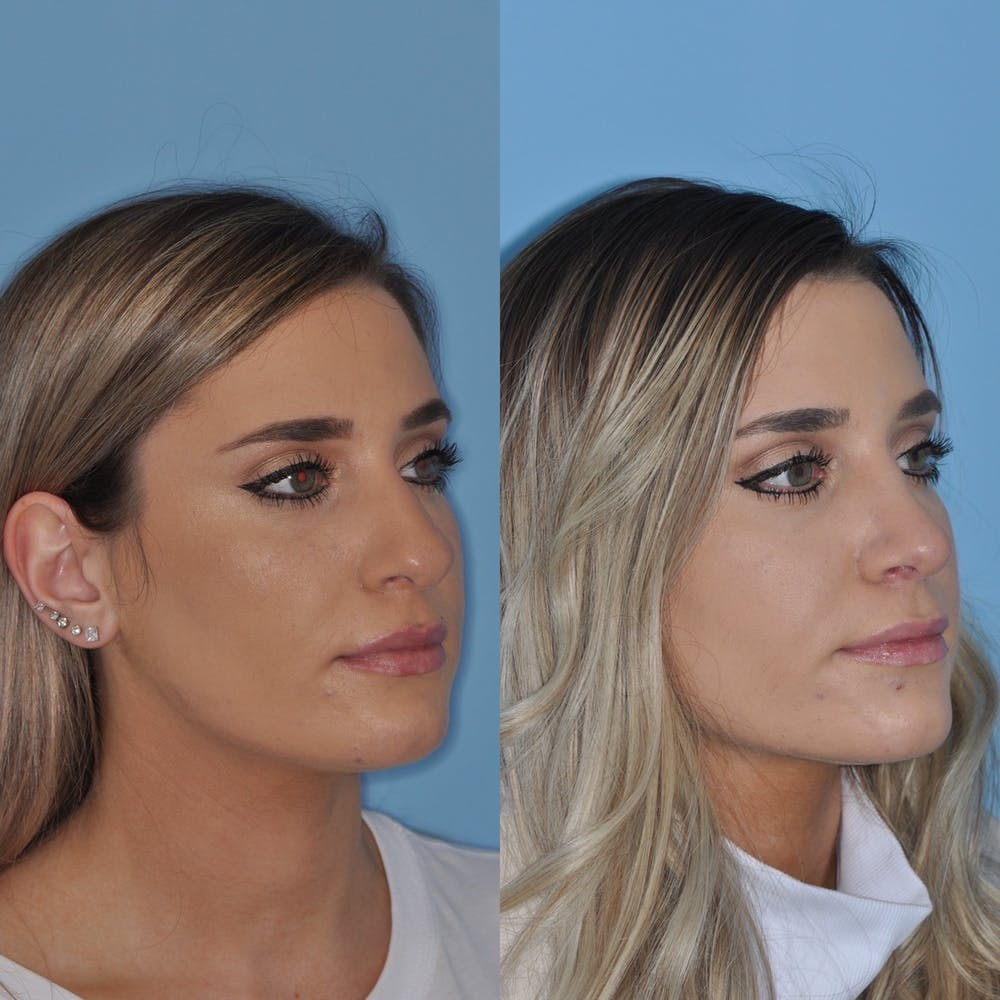 Rhinoplasty Gallery - Patient 31710046 - Image 3
