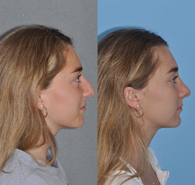 Rhinoplasty Gallery - Patient 31710044 - Image 4