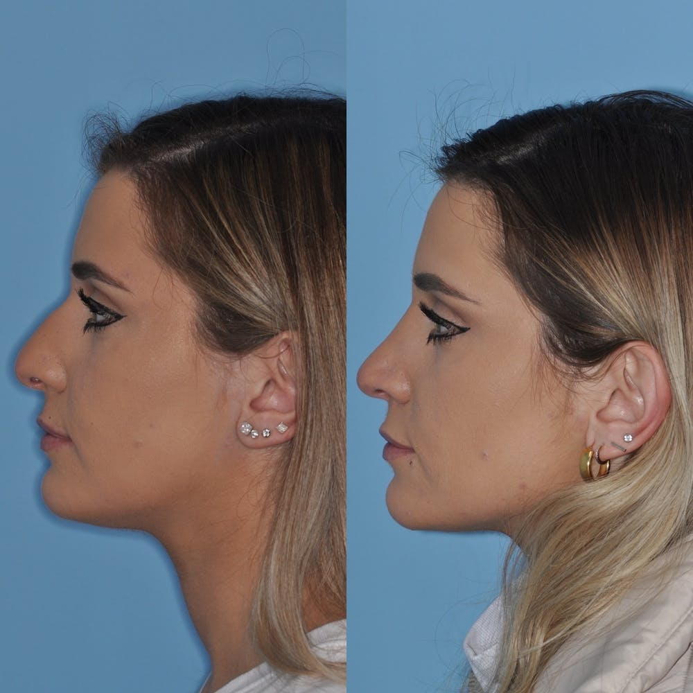 Rhinoplasty Gallery - Patient 31710046 - Image 4