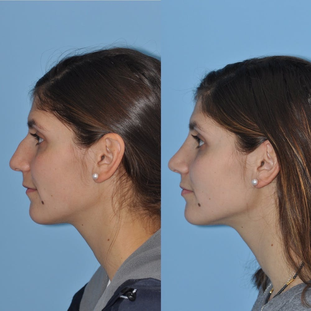 Rhinoplasty Gallery - Patient 31710048 - Image 4