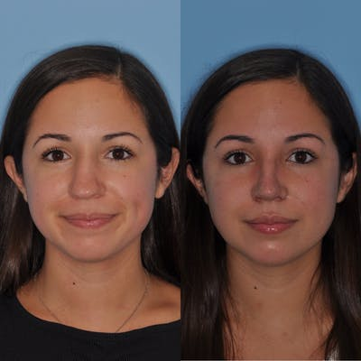 Rhinoplasty Gallery - Patient 31710050 - Image 1