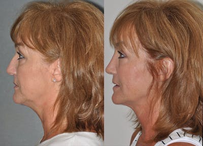 Rhinoplasty Gallery - Patient 31710051 - Image 1