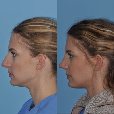 Rhinoplasty Gallery - Patient 31710052 - Image 1