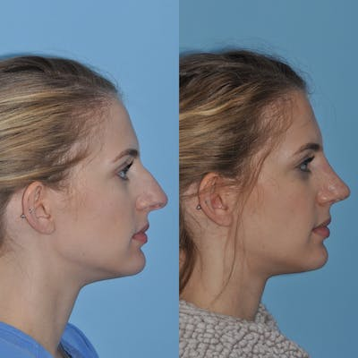 Rhinoplasty Gallery - Patient 31710052 - Image 2