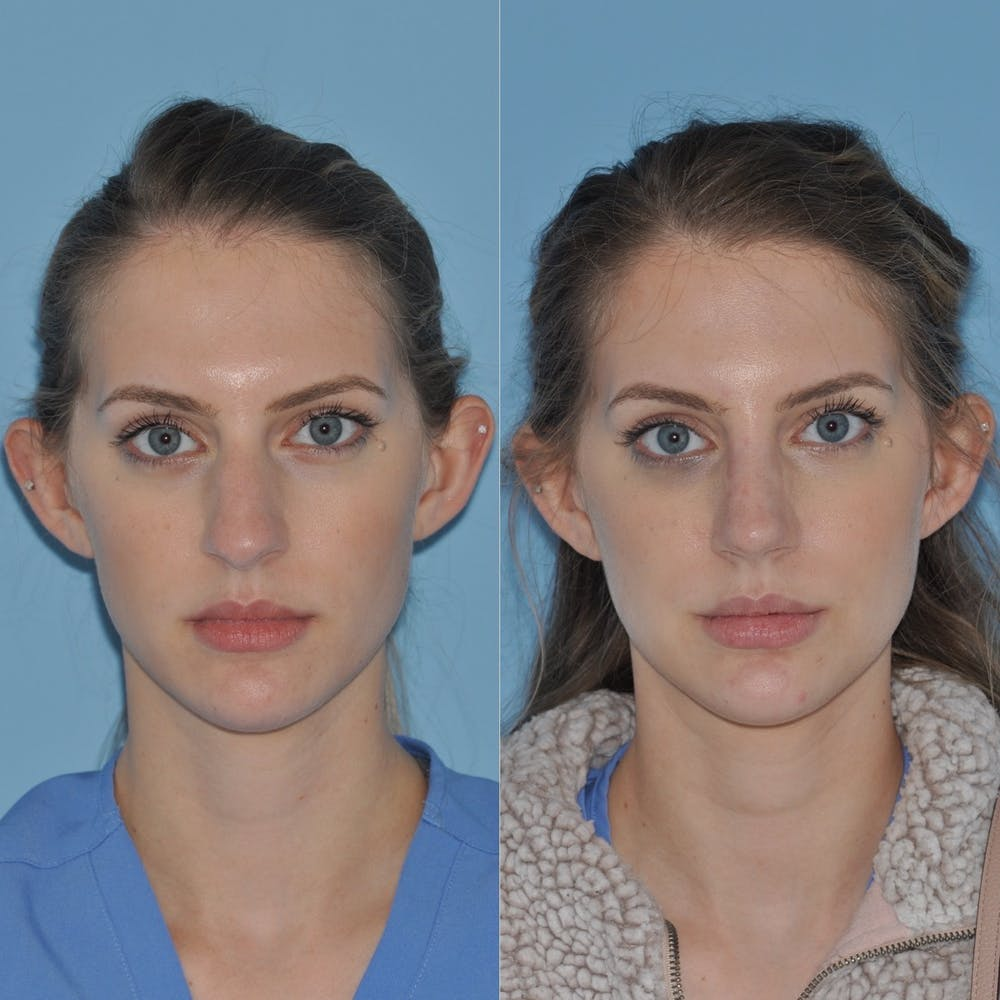 Rhinoplasty Gallery - Patient 31710052 - Image 3