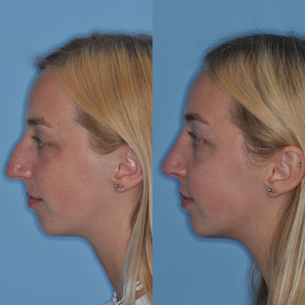 Rhinoplasty Gallery - Patient 31710053 - Image 2