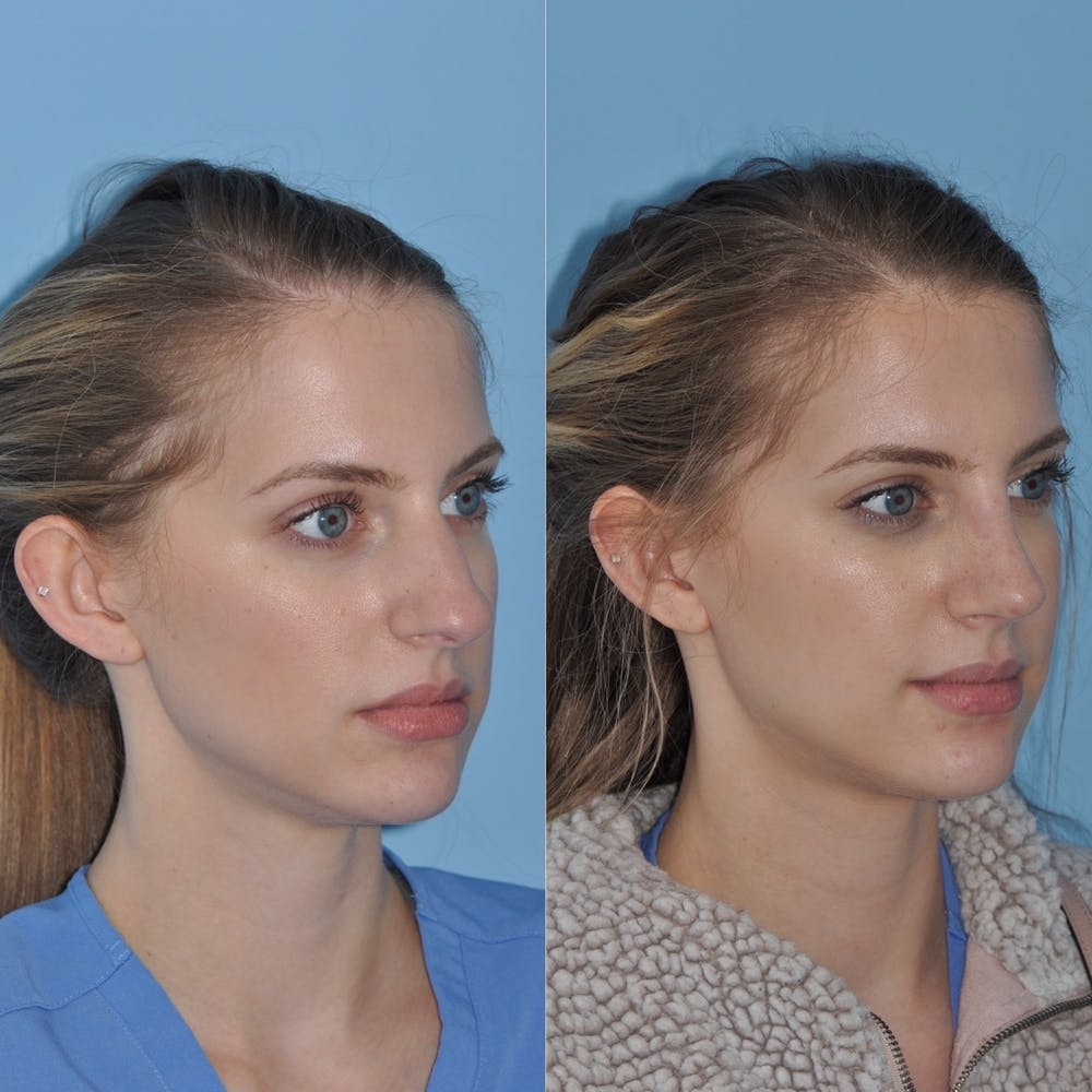 Rhinoplasty Gallery - Patient 31710052 - Image 4
