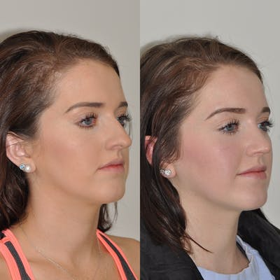 Rhinoplasty Gallery - Patient 31710054 - Image 1