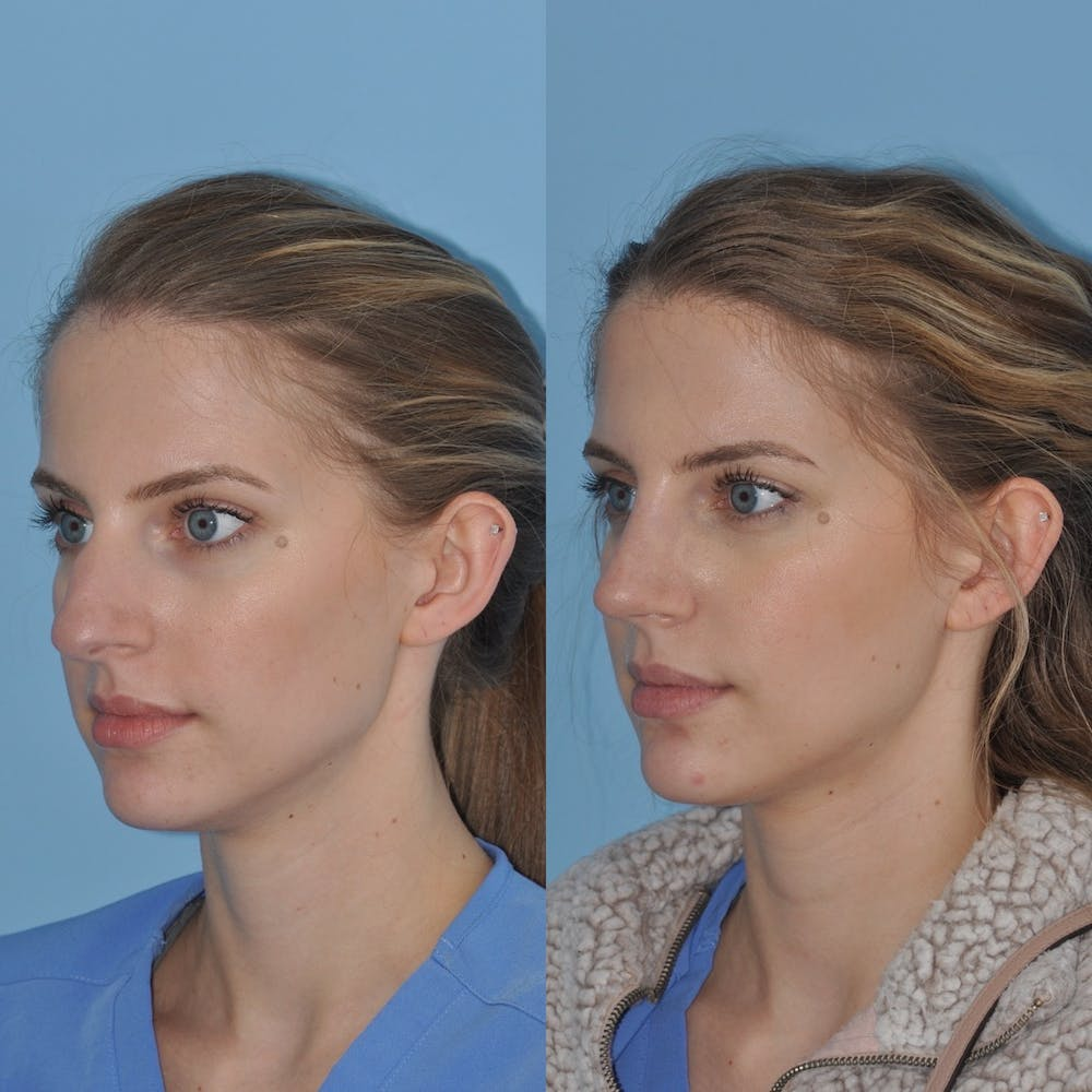 Rhinoplasty Gallery - Patient 31710052 - Image 5