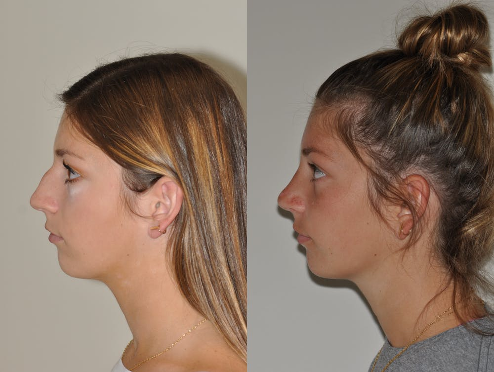 Rhinoplasty Gallery - Patient 31710055 - Image 2