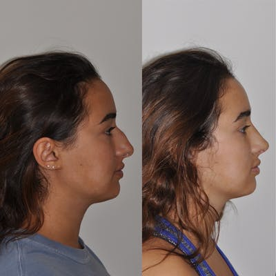 Rhinoplasty Gallery - Patient 31710057 - Image 2