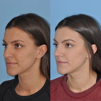 Rhinoplasty Gallery - Patient 31710059 - Image 1