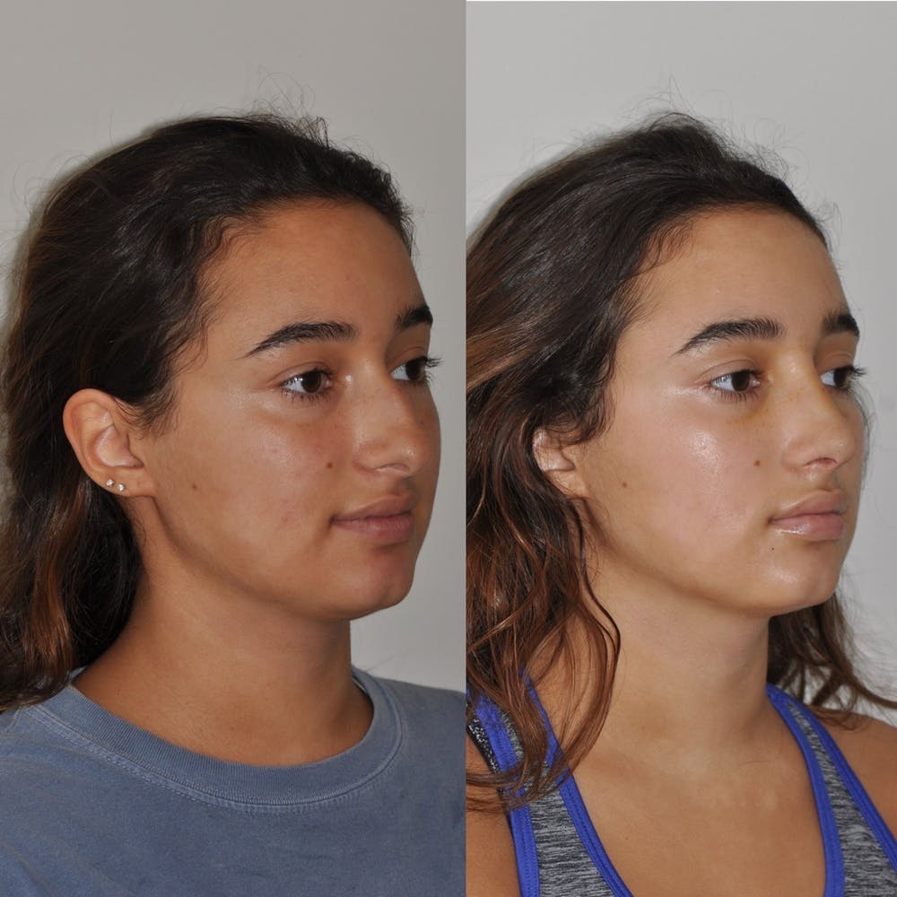 Rhinoplasty Gallery - Patient 31710057 - Image 3