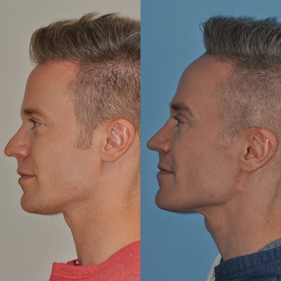 Rhinoplasty Gallery - Patient 31710060 - Image 1