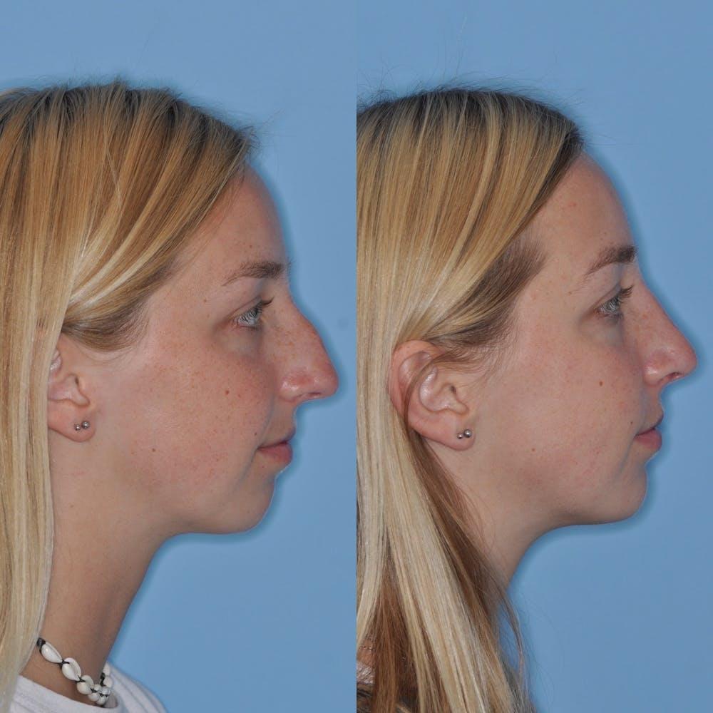 Rhinoplasty Gallery - Patient 31710053 - Image 6