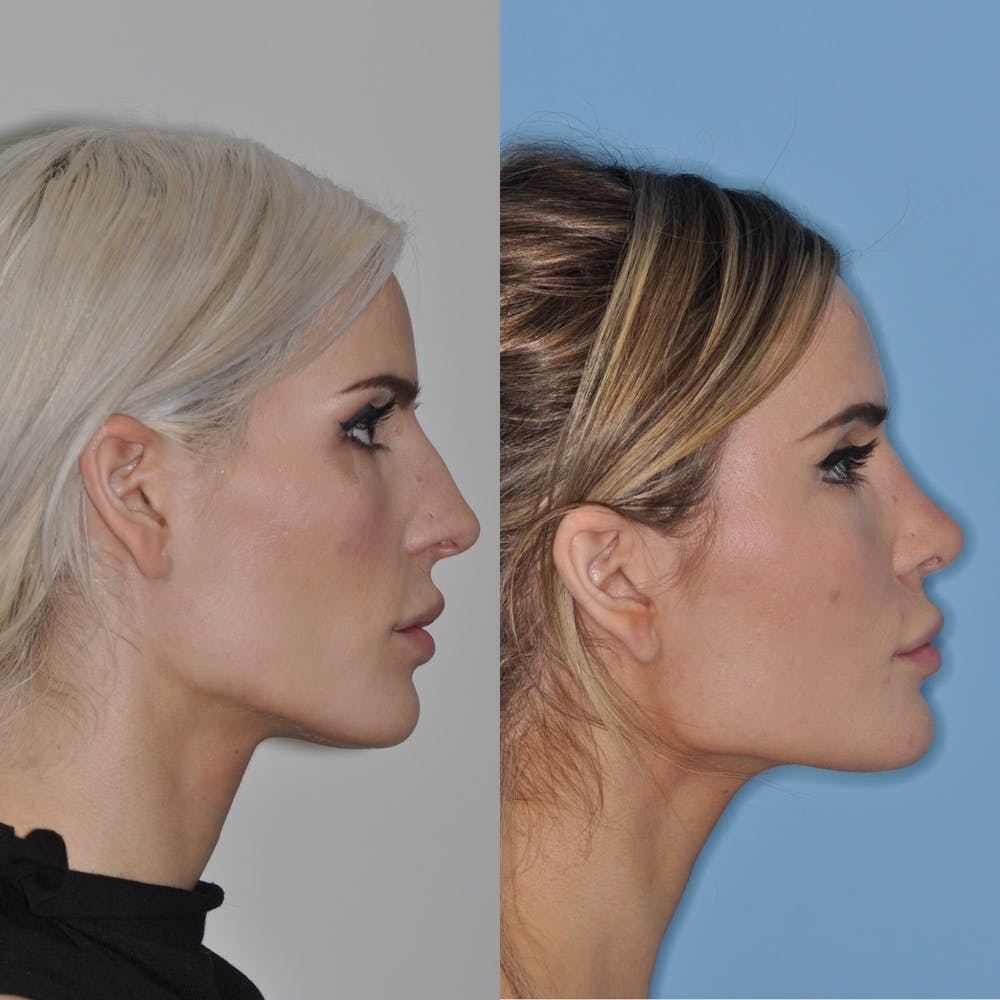 Rhinoplasty Gallery - Patient 31710061 - Image 1
