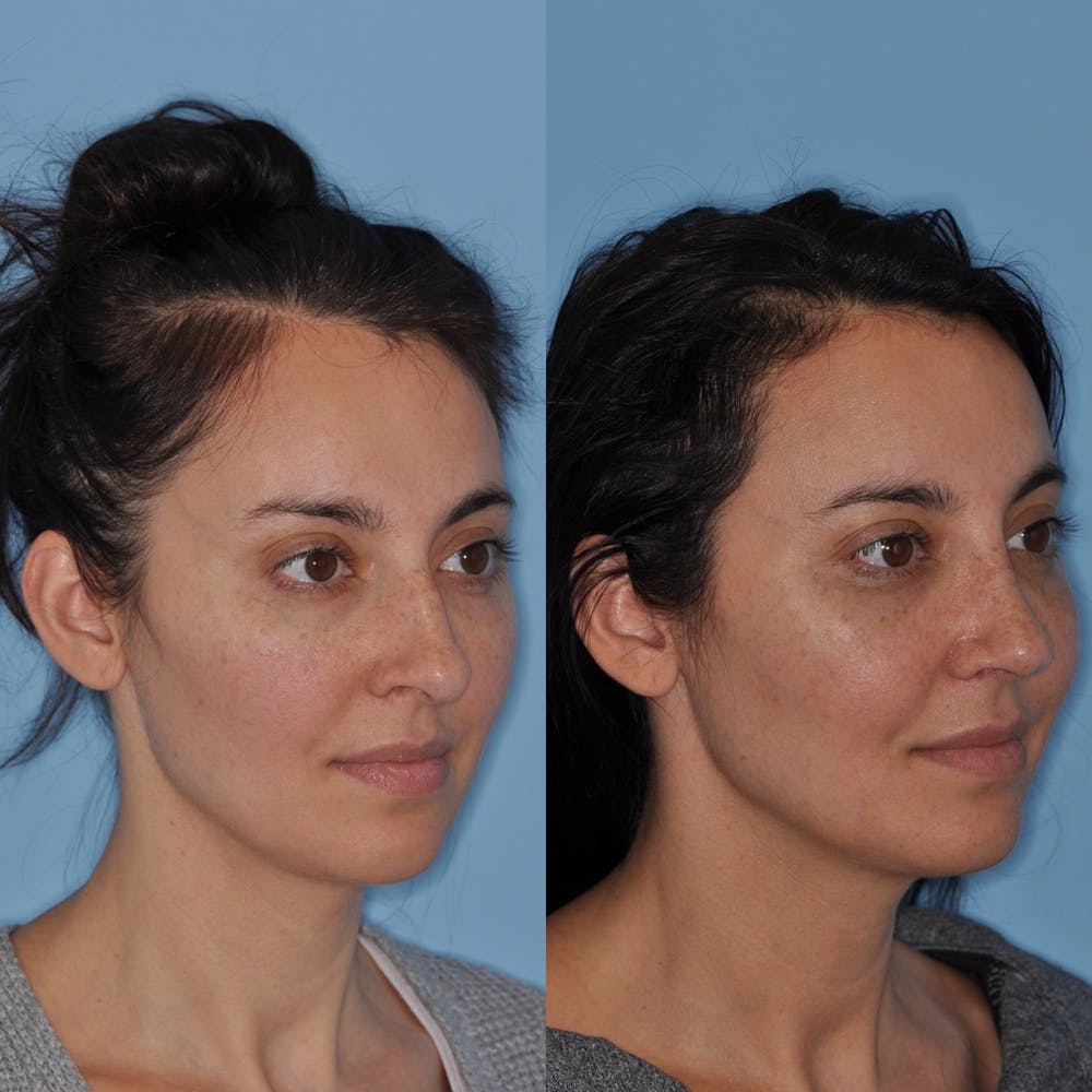 Rhinoplasty Gallery - Patient 31710062 - Image 1