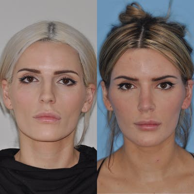 Rhinoplasty Gallery - Patient 31710061 - Image 2