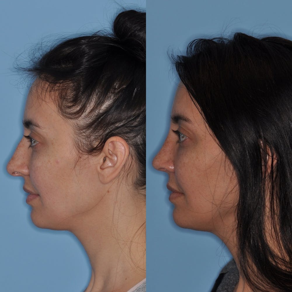 Rhinoplasty Gallery - Patient 31710062 - Image 2