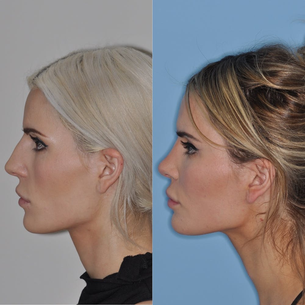 Rhinoplasty Gallery - Patient 31710061 - Image 3