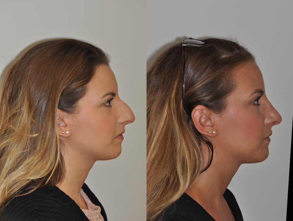 Rhinoplasty Gallery - Patient 31710058 - Image 4