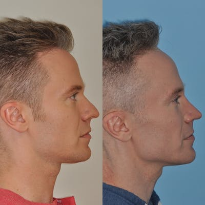 Rhinoplasty Gallery - Patient 31710060 - Image 4