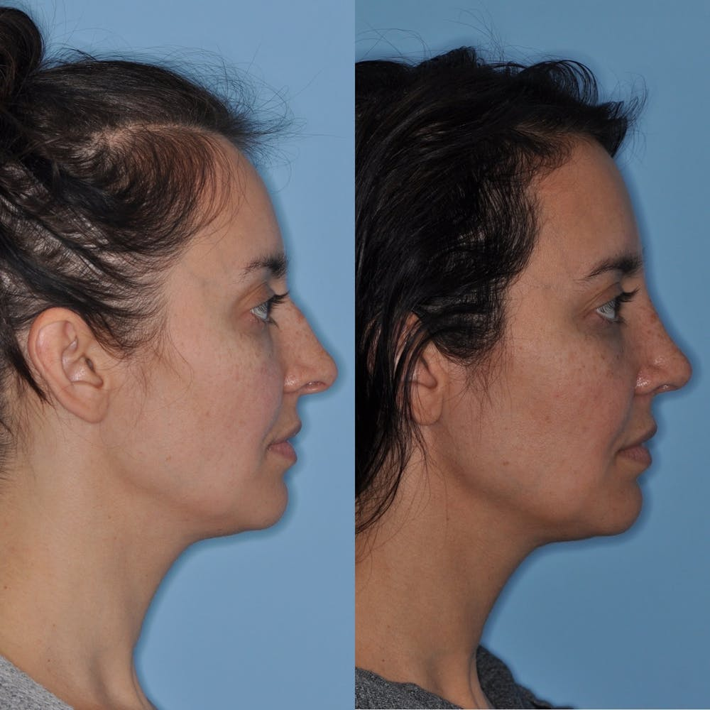 Rhinoplasty Gallery - Patient 31710062 - Image 3