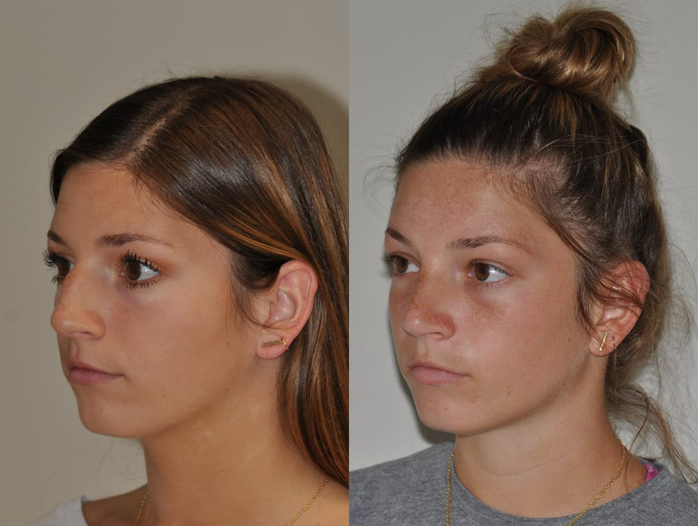 Rhinoplasty Gallery - Patient 31710055 - Image 5