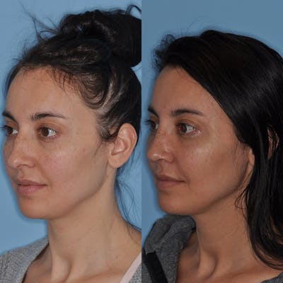 Rhinoplasty Gallery - Patient 31710062 - Image 4